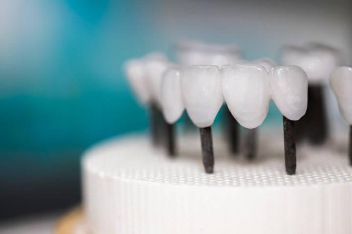 Zahnarzt Berlin Zahnersatz Kronen Prothesen Implantate