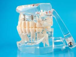 Zahnarzt Berlin Zahn-Prothesen
